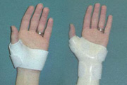 View Examples of Custom Splints from Hand Therapy Associates